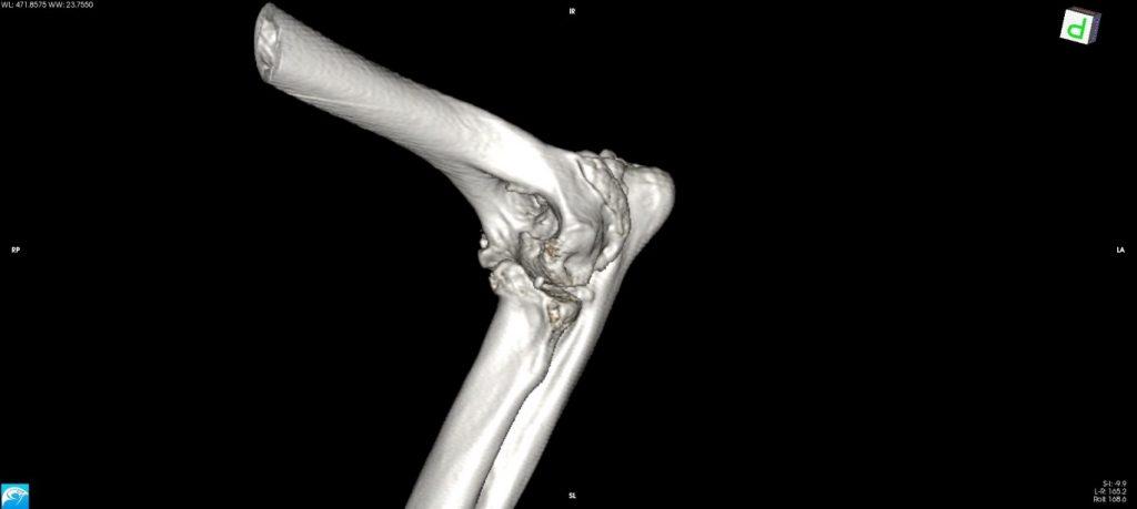 Osteoarthritis Visualisation